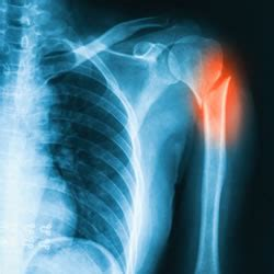 Beantown Physio   PT Tip of the Month Archive   Shoulder